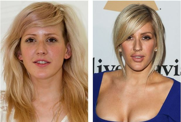 ellie-goulding-before-and-now-ellie-goulding-nose-job-ellie-goulding-breast-implants-ellie-goulding-lip-injections-ellie-goulding-plastic-surgery4