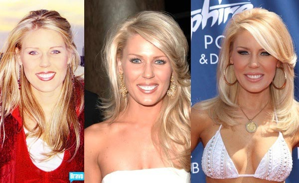 gretchen-rossi-plastic-surgery-gretchen-rossi-breast-implants-gretchen-rossi-lip-injection-gretchen-rossi-the-real-housewives
