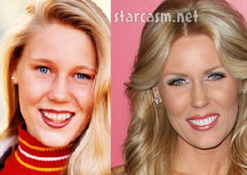 gretchen-rossi-plastic-surgery-gretchen-rossi-breast-implants-gretchen-rossi-lip-injection-gretchen-rossi-the-real-housewives1