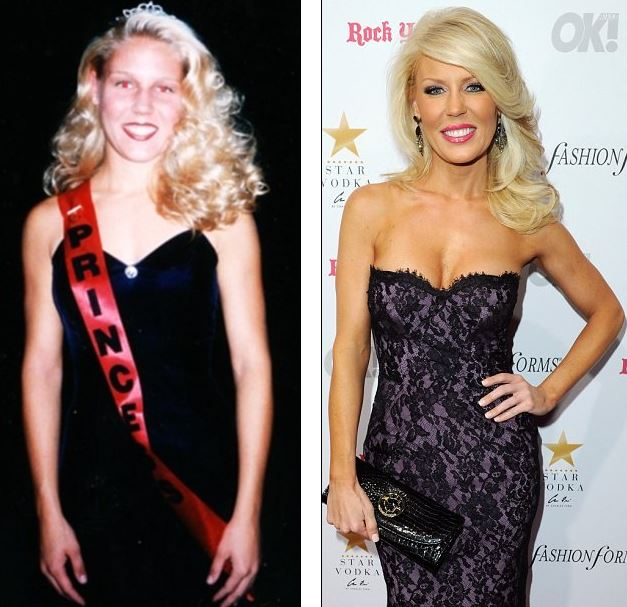 gretchen-rossi-plastic-surgery-gretchen-rossi-breast-implants-gretchen-rossi-lip-injection-gretchen-rossi-the-real-housewives2