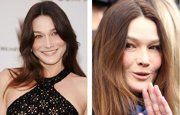 carla bruni plastic surgery, carla bruni worst plastic surgery, carla bruni before after photos