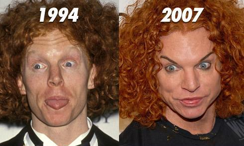 carrot top scott thompson plastic surgery, carrot top before after plastic surgery, carrot top worst plastic surgery