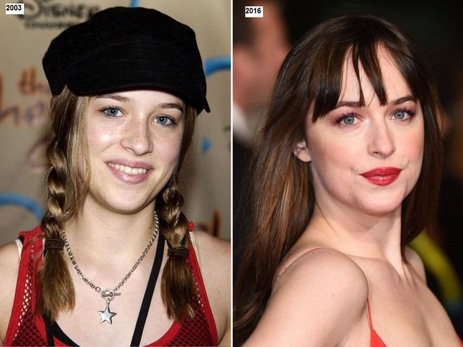 Dakota Johnson Plastic Surgery Before And After Photos