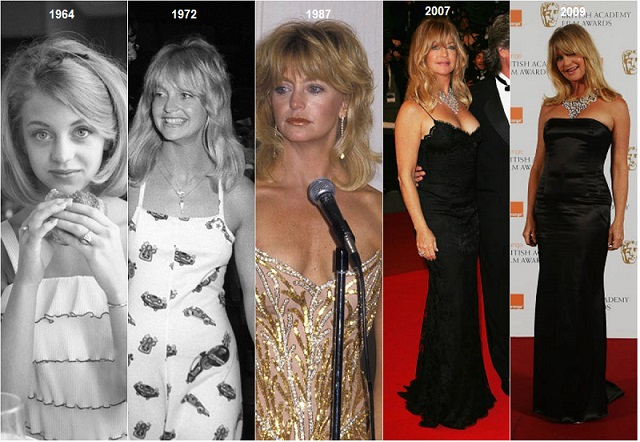 goldie hawn plastic surgery, goldie hawn now and then, goldie hawn plastic surgery before after photos, goldie hawn face timeline, goldie hawn 2017