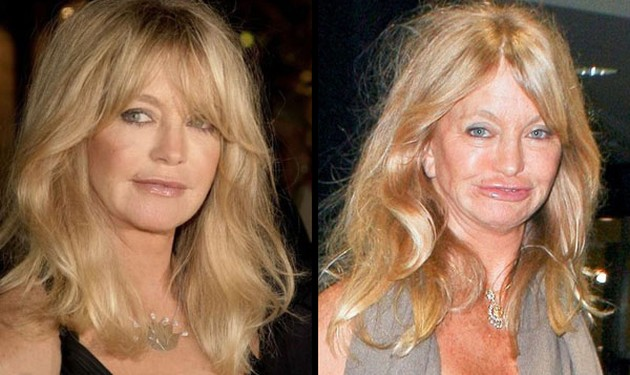 goldie hawn plastic surgery, goldie hawn now and then, goldie hawn plastic surgery before after photos