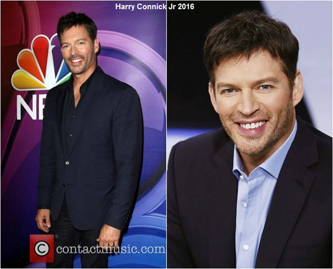 harry connick jr 2016 photo, harry connick jr smile, harry connick jr plastic surgery