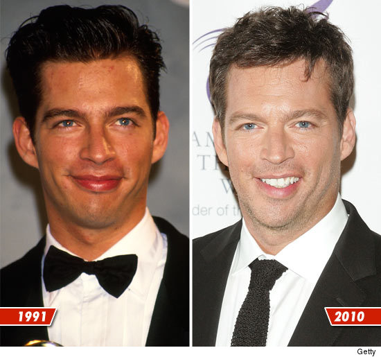 harry connick jr plastic surgery, harry connick jr before and after, harry connick jr mouth, harry connick plastic surgery before after photos