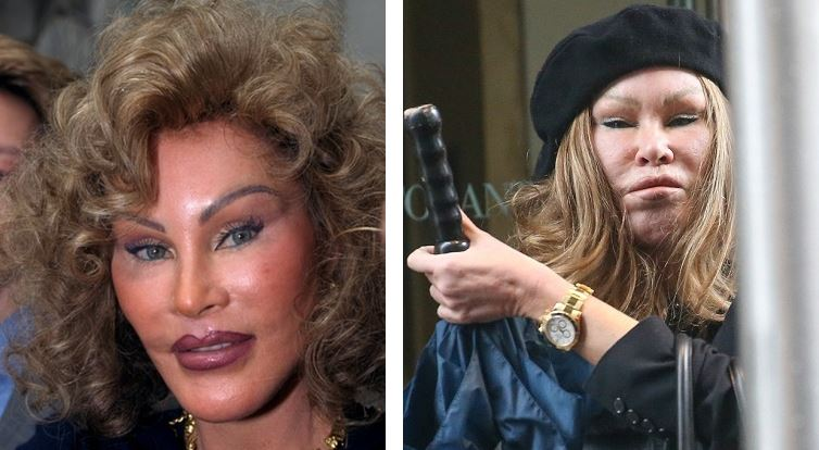 jocelyn wildenstein plastic surgery, jocelyn wildenstein plastic surgery before after, jocelyn wildenstein worst plastic surgery