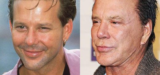 mickey rourke plastic surgery, mickey rourke before after plastic surgery, mickey rourke worst plastic surgery