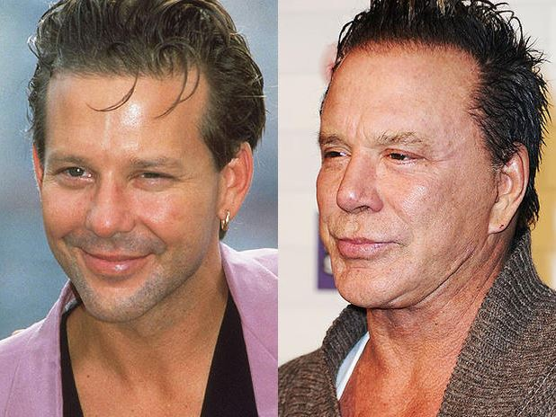 Mickey Rourke Plastic Surgery Before And After Photos