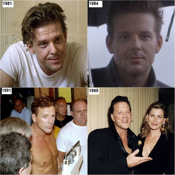 mickey rourke plastic surgery, mickey rourke face time line, mickey rourke before and after plastic surgery, mickey rourke then and now, mickey rourke photos