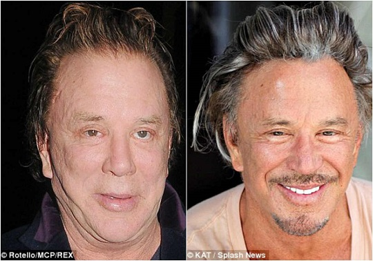 mickey rourke plastic surgery, mickey rourke plastic surgery before after photos, mickey rourke now and then, mickey rourke 2016