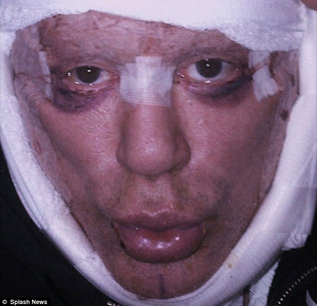 mickey rourke post plastic surgery recovery, mickey rourke 2012, mickey rourke before and after