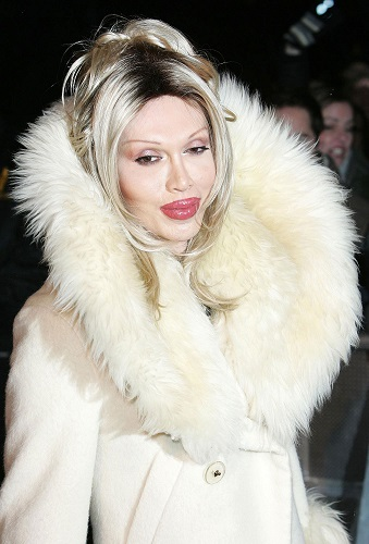 pete burns plastic surgery, pete burns cosmetic surgery, pete burns dressed up as a woman, pete burns plastic surgery before and after photos