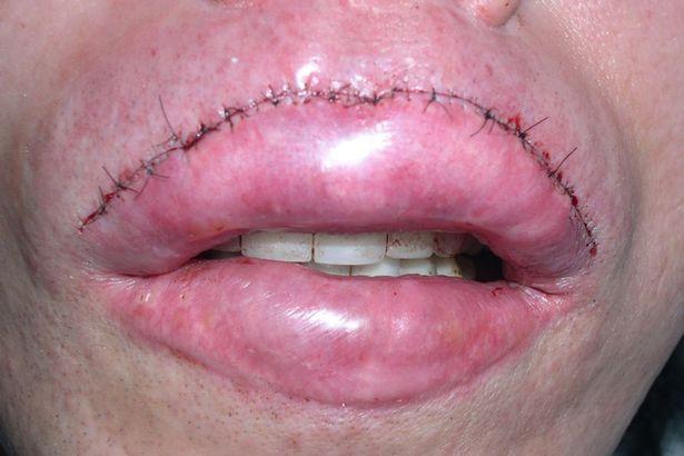 pete burns plastic surgery, pete burns lip fillers, pete burns worst plastic surgery, pete burns lip augmentation