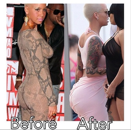 amber rose plastic surgery, amber rose before plastic surgery, amber rose before and after, amber rose butt implants, amber rose breast implants1