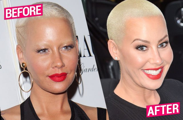 amber rose plastic surgery, amber rose before plastic surgery, amber rose before and after, amber rose butt implants, amber rose breast implants2