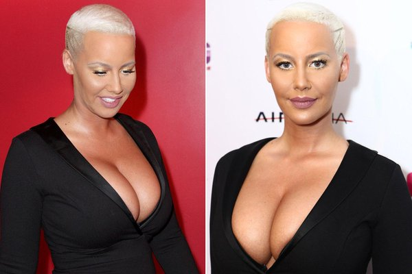 amber rose plastic surgery, amber rose before plastic surgery, amber rose before and after, amber rose butt implants, amber rose breast implants3