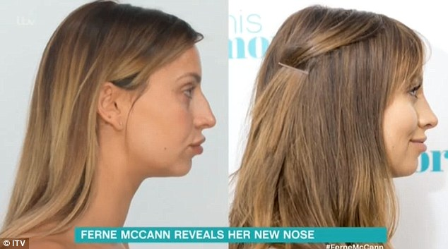 ferne mccann plastic surgery, ferne mccann nose job, ferne mccann new nose, ferne mccann nose before and after, ferne mccann before and after
