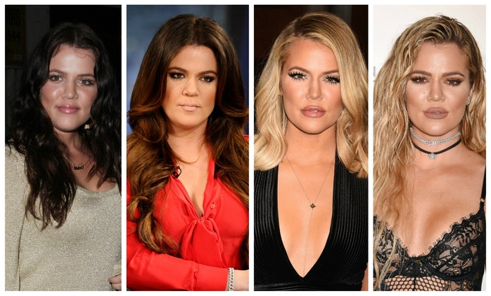 khloe kardashian plastic surgery, khloe kardashian plastic surgery before after photos, khloe kardashian face evolution, khloe kardashian before plastic surgery