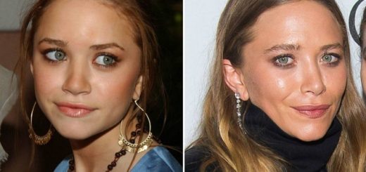 mary-kate olsen plastic surgery, mary-kate olse before and after, mary-kate olsen nose job, mary-kate olsen facelift