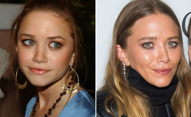 Mary-Kate Olsen Plastic Surgery Before And After Photos