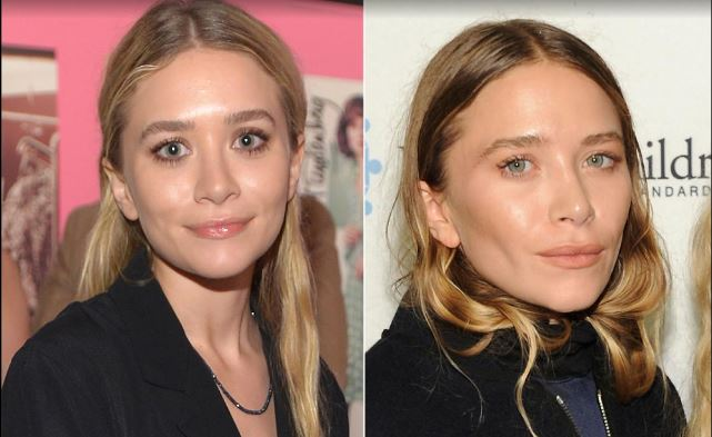 mary-kate olsen plastic surgery, mary-kate olse before and after, mary-kate olsen nose job, mary-kate olsen facelift1