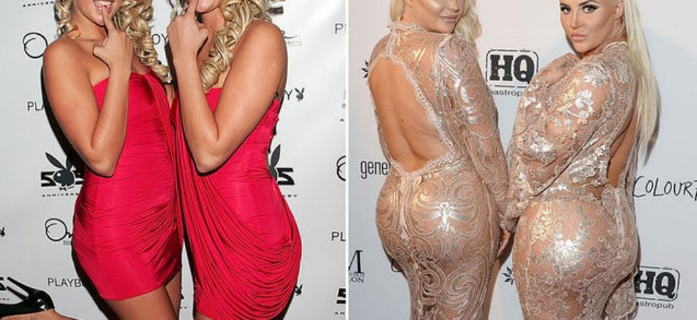 shannon twins plastic surgery, shannon twins plastic surgery before after photos