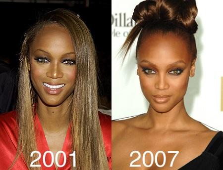 tyra banks plastic surgery, tyra banks nose job, tyra banks plastic surgery before after photos, tyra banks breast implants-1