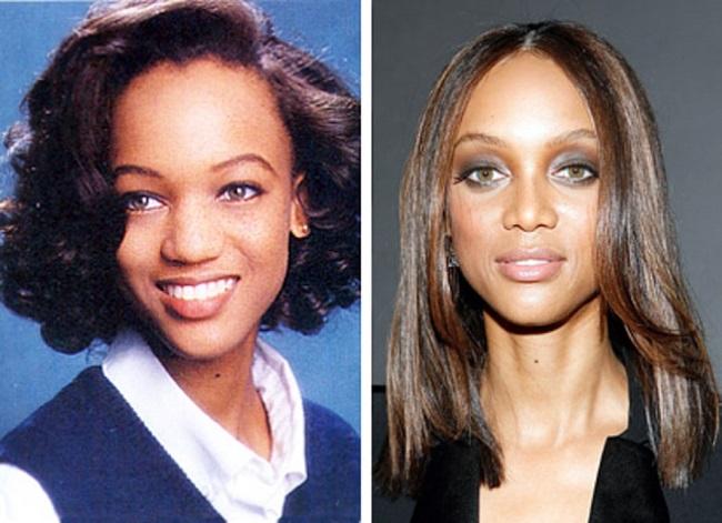 tyra banks plastic surgery, tyra banks nose job, tyra banks plastic surgery before after photos, tyra banks breast implants-2