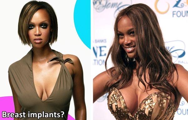 tyra banks plastic surgery, tyra banks nose job, tyra banks plastic surgery before after photos, tyra banks breast implants_3
