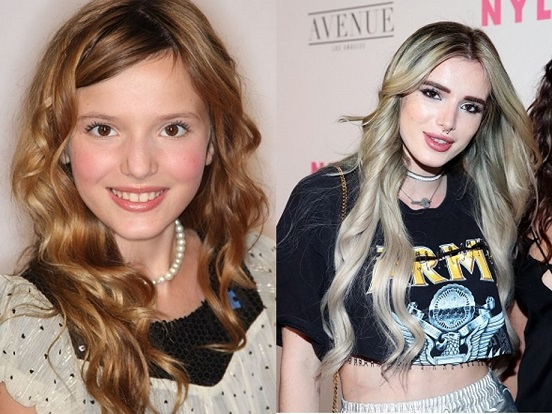 bella thorne plastic surgery, bella thorne boob job, bella thorne lips, bella thorne nose job, bella thorne plastic surgery before after photos5