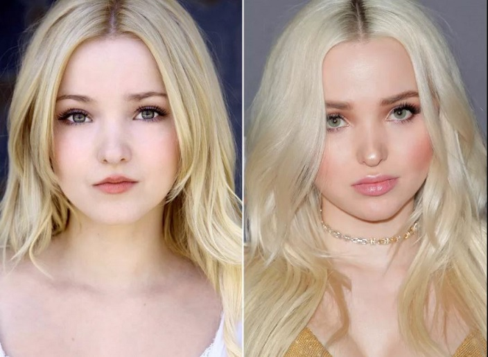 Dove Cameron Plastic Surgery Before And After Photos