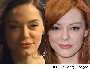 rose mcgowan plastic surgery, rose mcgowan face lift, eyelid lift, rose mcgowan before and after, rose mcgowan plastic surgery before and after photos1