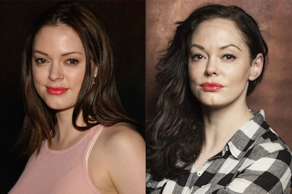 rose mcgowan plastic surgery, rose mcgowan face lift, eyelid lift, rose mcgowan before and after, rose mcgowan plastic surgery before and after photos3