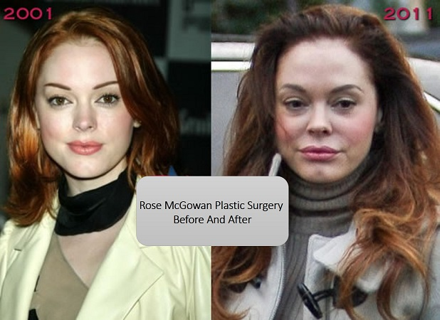 rose mcgowan plastic surgery, rose mcgowan face lift, eyelid lift, rose mcgowan before and after, rose mcgowan plastic surgery before and after photos35